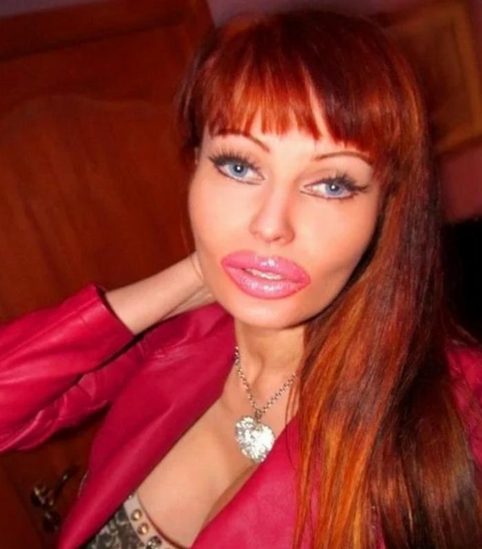 Девушка потратила более 3 млн. рублей на пластические операции, чтобы исполнить свою мечту