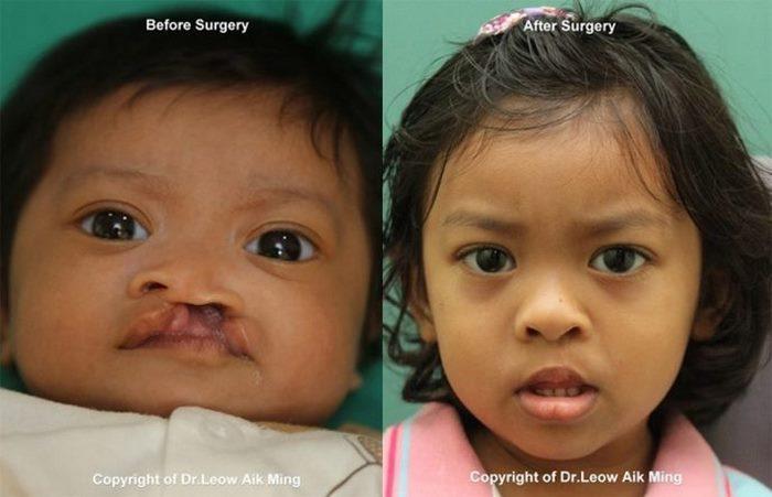 8 фото о том, зачем на самом деле нужна пластическая хирургия
